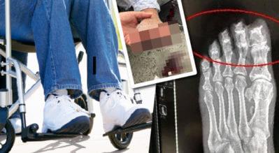 輪椅腳拖地,「磨到見骨」滿地血?推輪椅前,三點不漏要做到